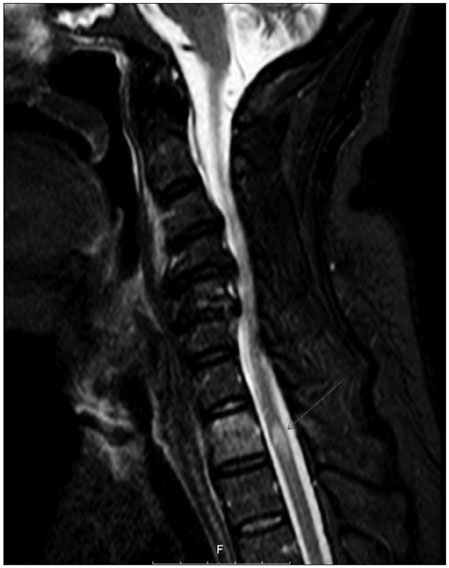 Paraplegia Following Spinal Cord Contusion from an Indirect Gunshot